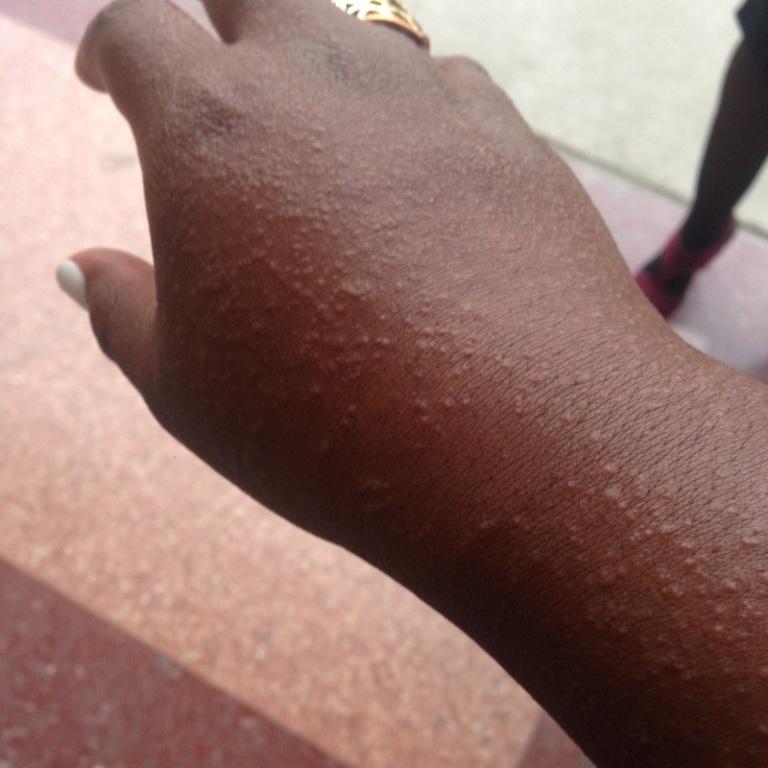 heat rash
