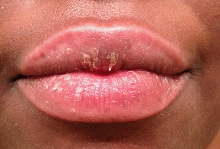 lip flaking